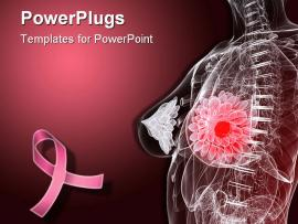 Breast Cancer Anatomy Backgrounds